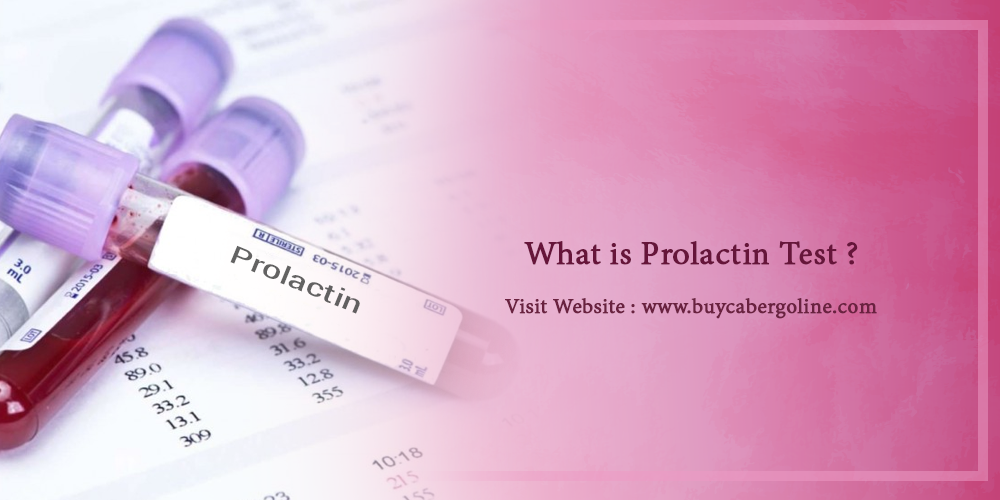 What is the prolactin test