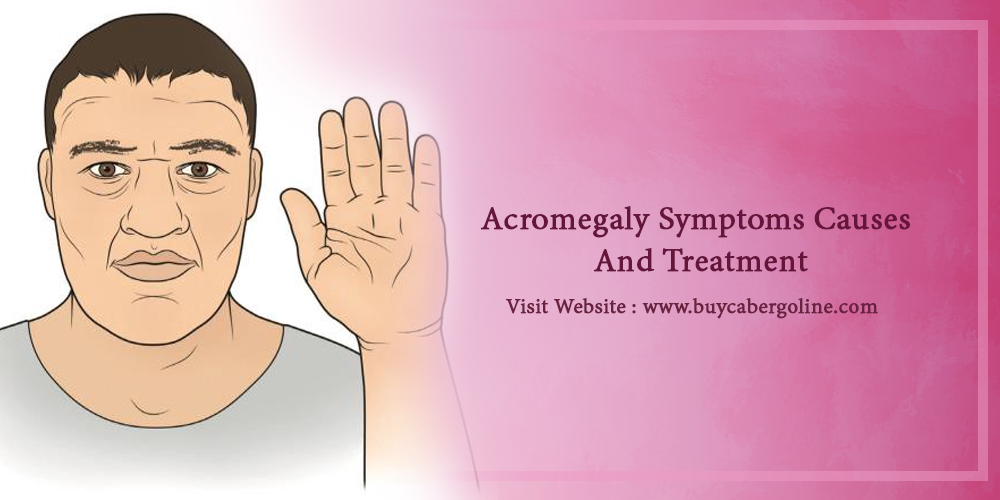 Acromegaly Symptoms Causes And Treatment